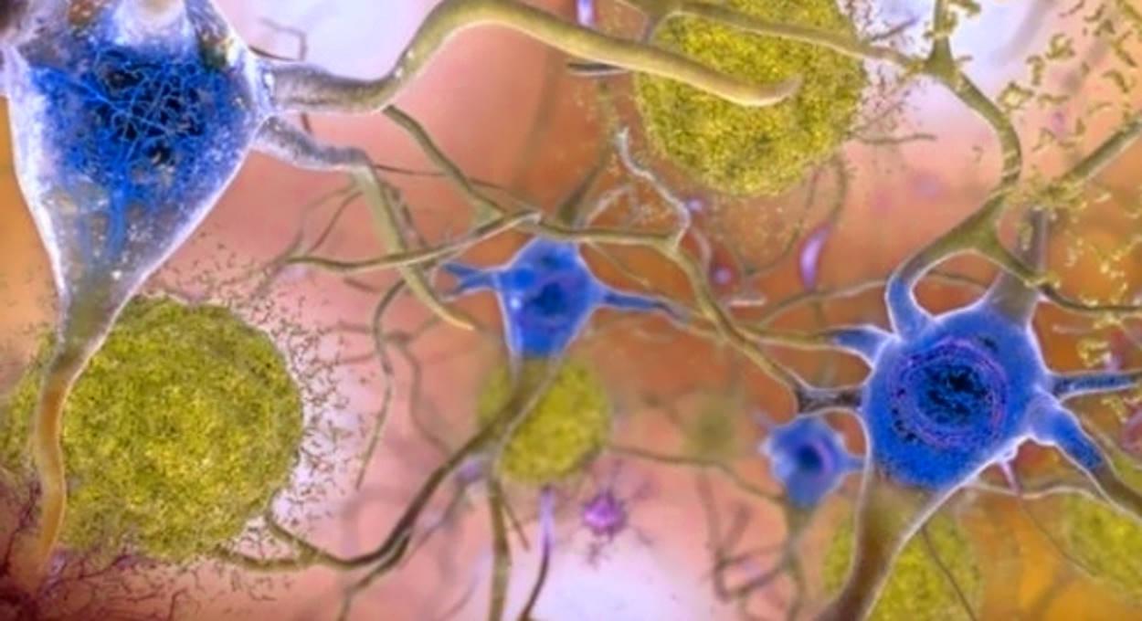 I Flavonoidi nella dieta diminuirebbero il rischio di Alzheimer