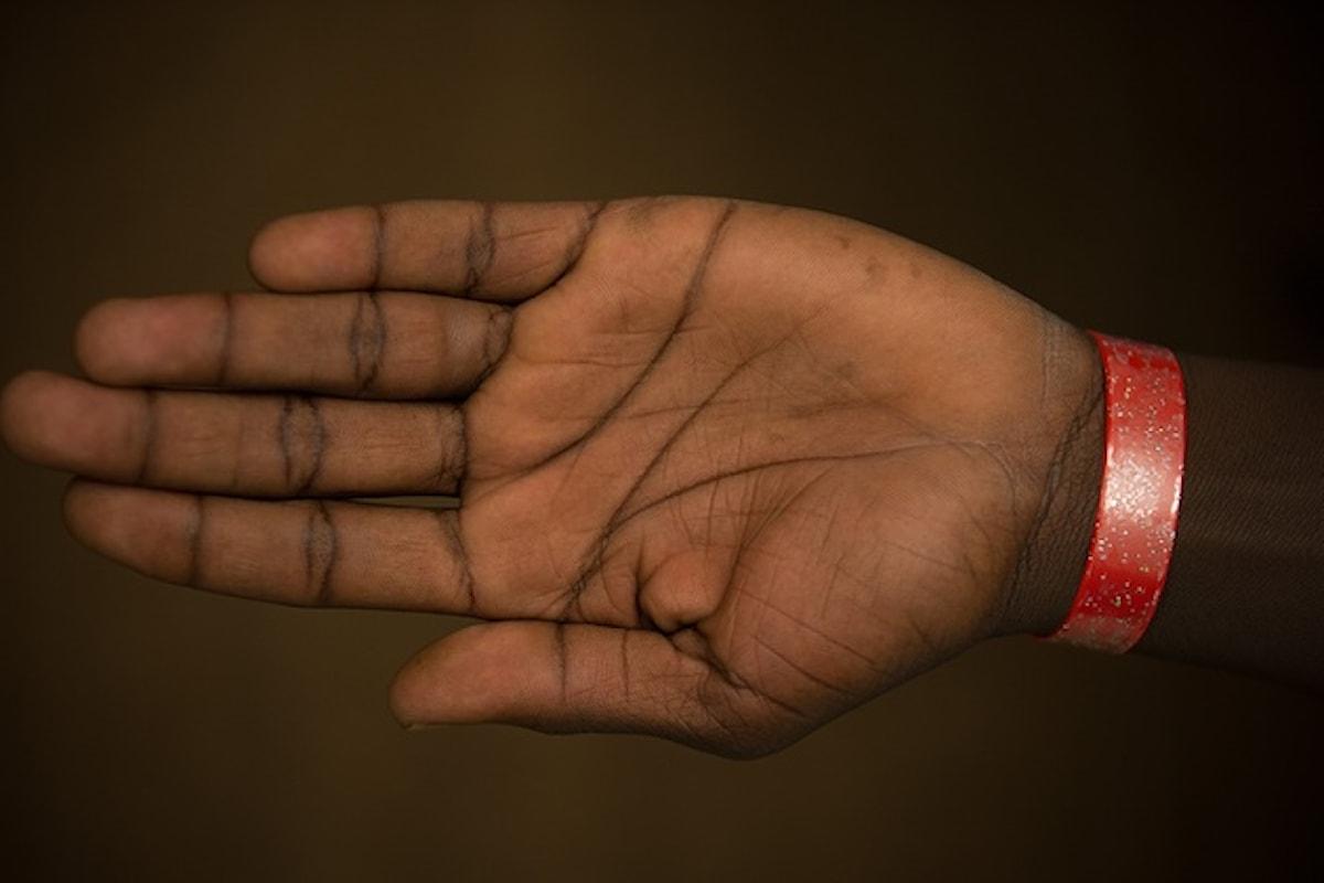 A Cardiff i rifugiati identificati con un braccialetto colorato